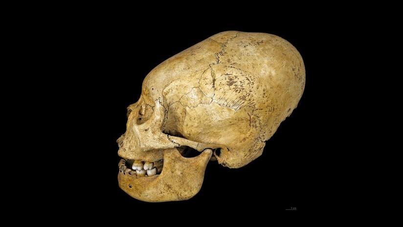 Cráneo deformado